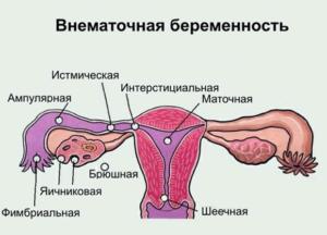 Внематочная беременность сколько дней больничный