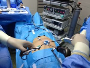 Сколько лежат в больнице после удаления кисты яичника, последствия и уход после хирургического вмешательства